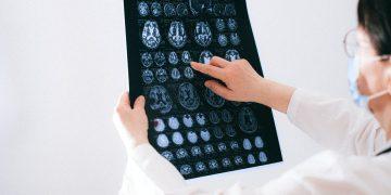 Radiolog czym się zajmuje?